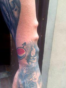 skats no sāna, zem ādas implanti 8mm augsti
